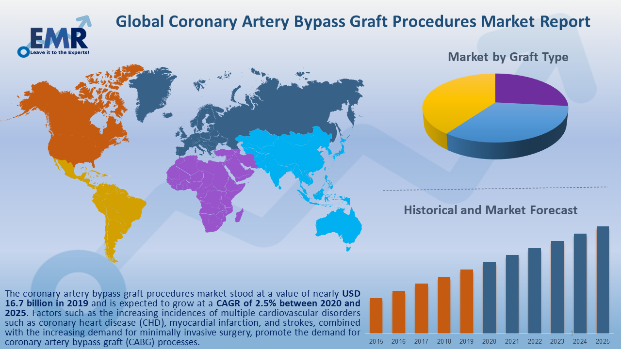 Global Coronary Bypass Graft Procedures Market Report and Forecast 2020-2025