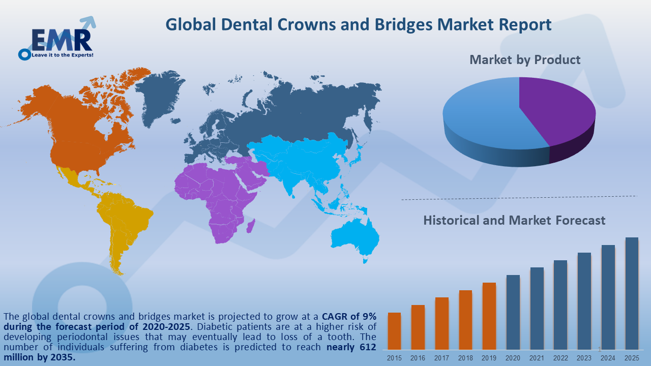 Global Dental Crowns and Bridges Market Report and Forecast 2020-2025