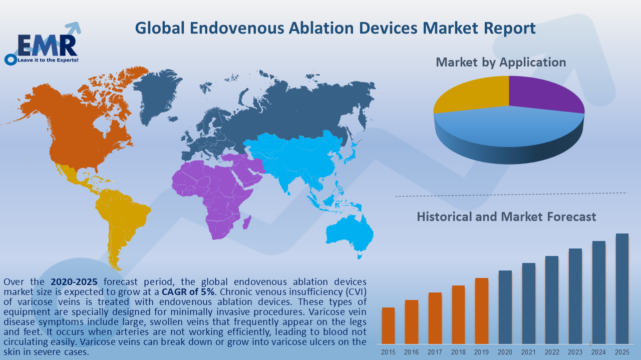 Global Endovenous Ablation Devices Market Report and Forecast 2020-2025