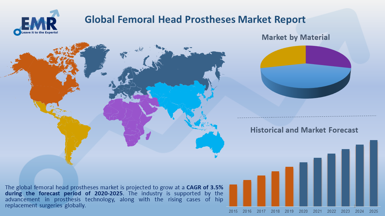 Global Femoral Head Prostheses Market Report and Forecast 2020-2025