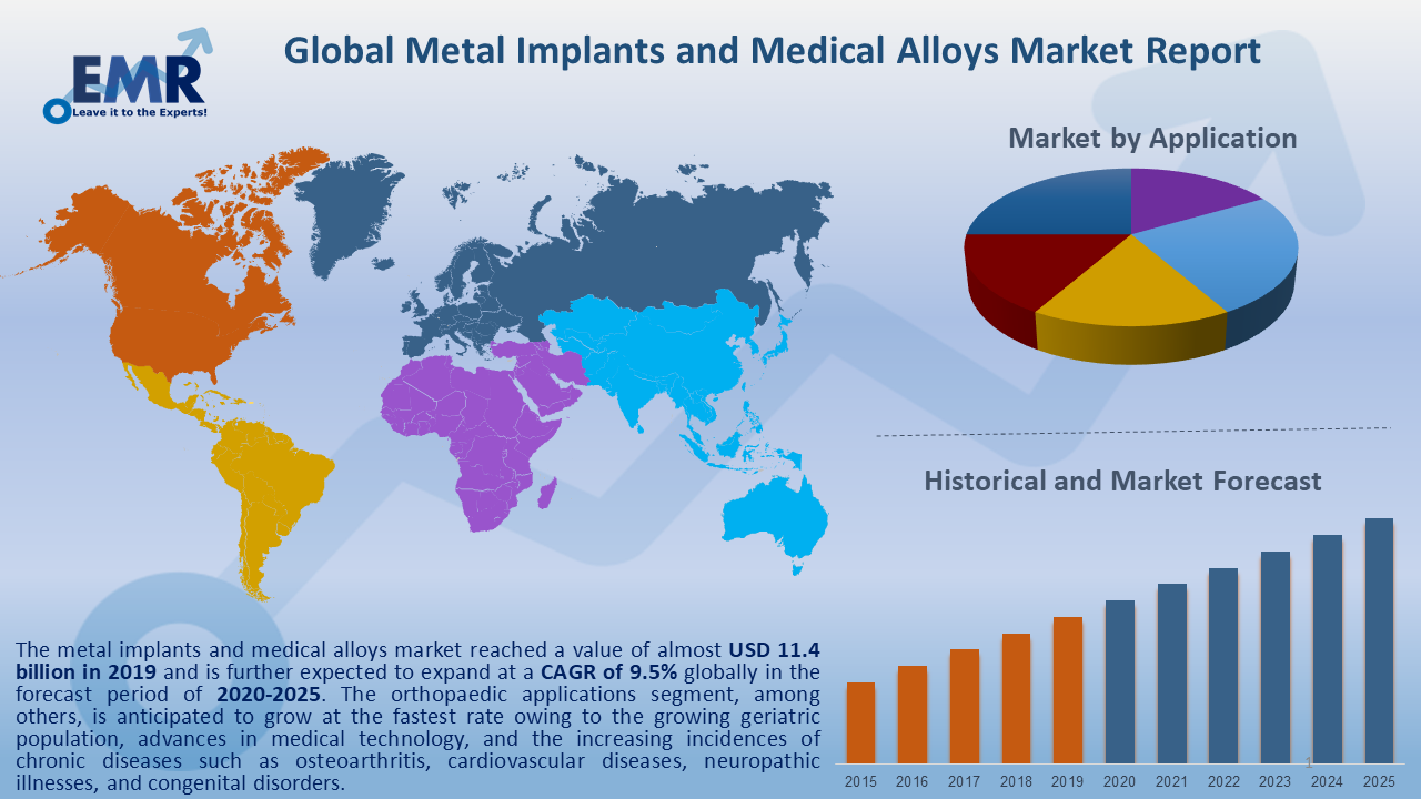 Global Metal Implants and Medical Alloys Market Report and Forecast 2020-2025