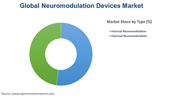 Global Neuromodulation Devices Market By Type
