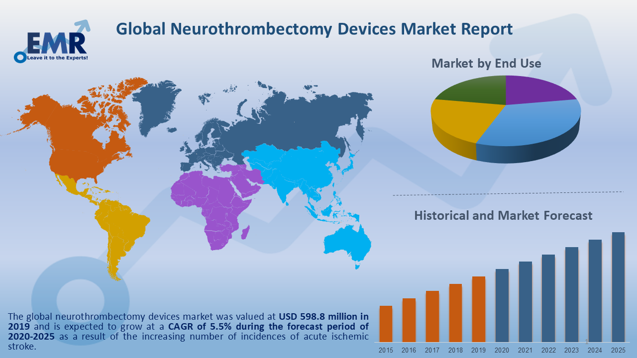 Global Neurothrombectomy Devices Market Report and Forecast 2020-2025