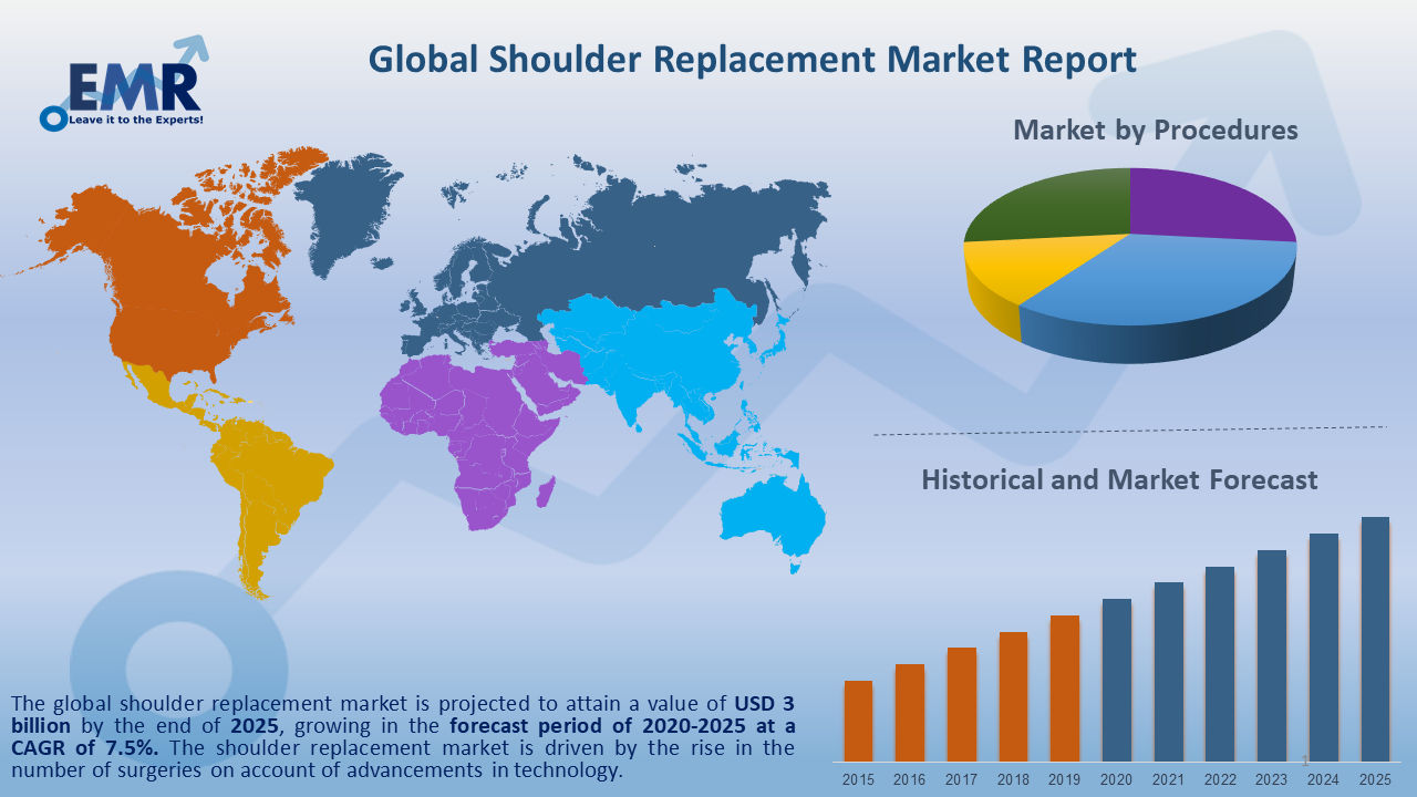 Global Shoulder Replacement Market Report and Forecast 2020-2025