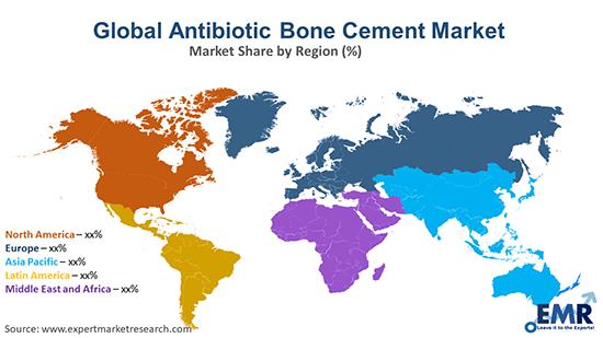 Global Antibiotic Bone Cement Market By Region
