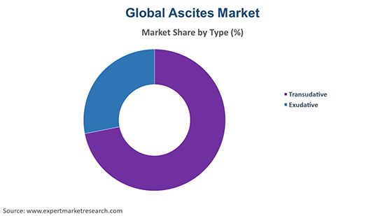 Global Ascites Market By Type