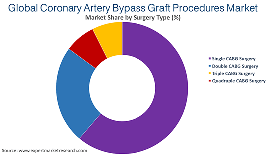 Global Coronary Artery Bypass Graft Procedures Market By Surgery Type