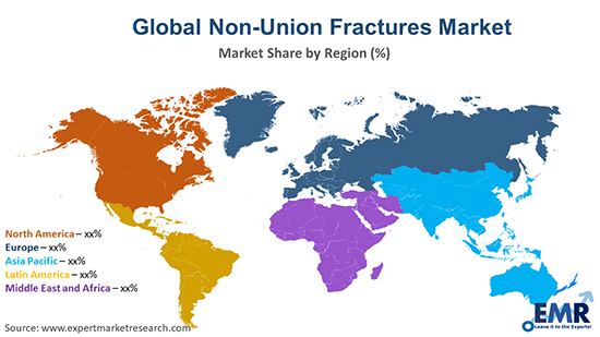 Global Non-Union Fractures Market By Region