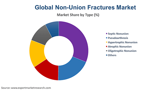 Global Non-Union Fractures Market By Type