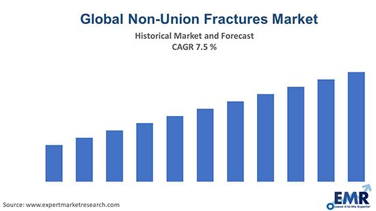 Global Non-Union Fractures Market